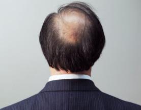 脂溢性脱发如何治疗